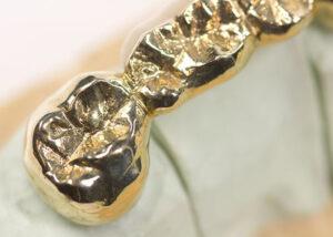 ritiro scarti odontoiatrici oro